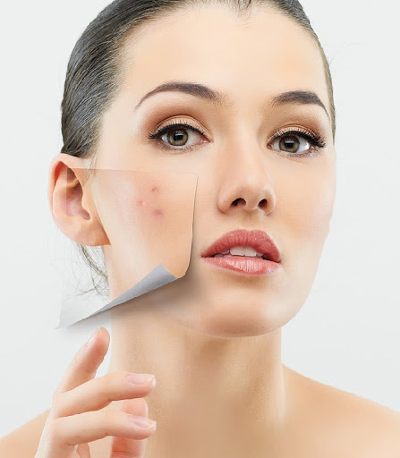 Acne Treatment Effective